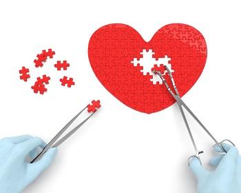 Intervento cardiochirurgia pronto soccorso