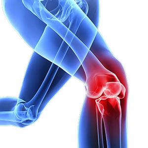 Chirurgia protesica ginocchio