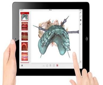 Implantologia dentale virtuale
