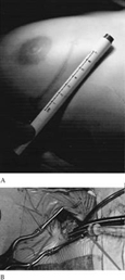 Accesso per la valvola mitrale, valvola tricuspide