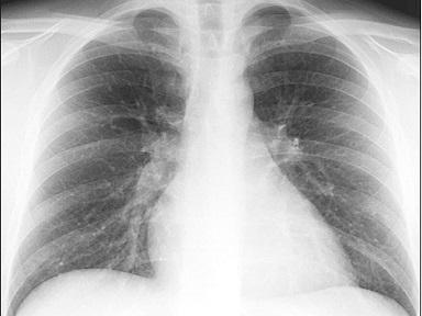 Radiazioni esami radiologici
